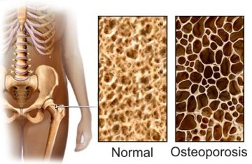 osteoporosis_exercise_prevention